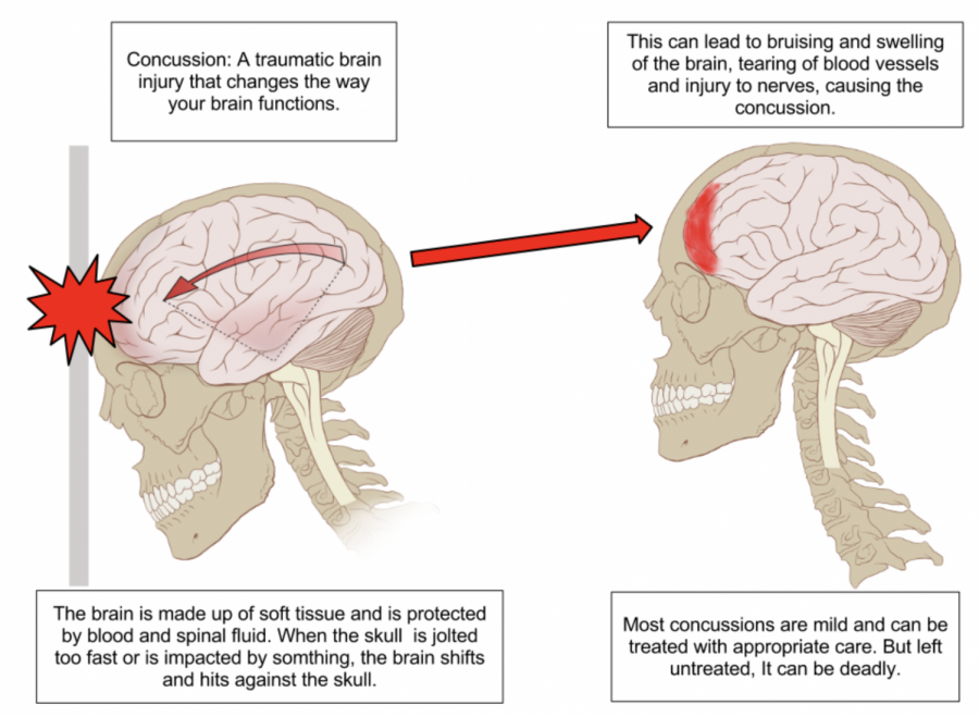 A concussion is a traumatic brain injury that changes the way your brain functions. When the skull is jolted or impacted by a hard surface, the brain shifts, slamming against the skull, causing damage and swelling to the brain. If treated correctly, the brain will heal. But if not, results can be deadly. Diagram on Concussion Mechanics by Max Andrews.